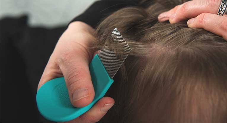 Home Remedies for Head Lice: What Works?