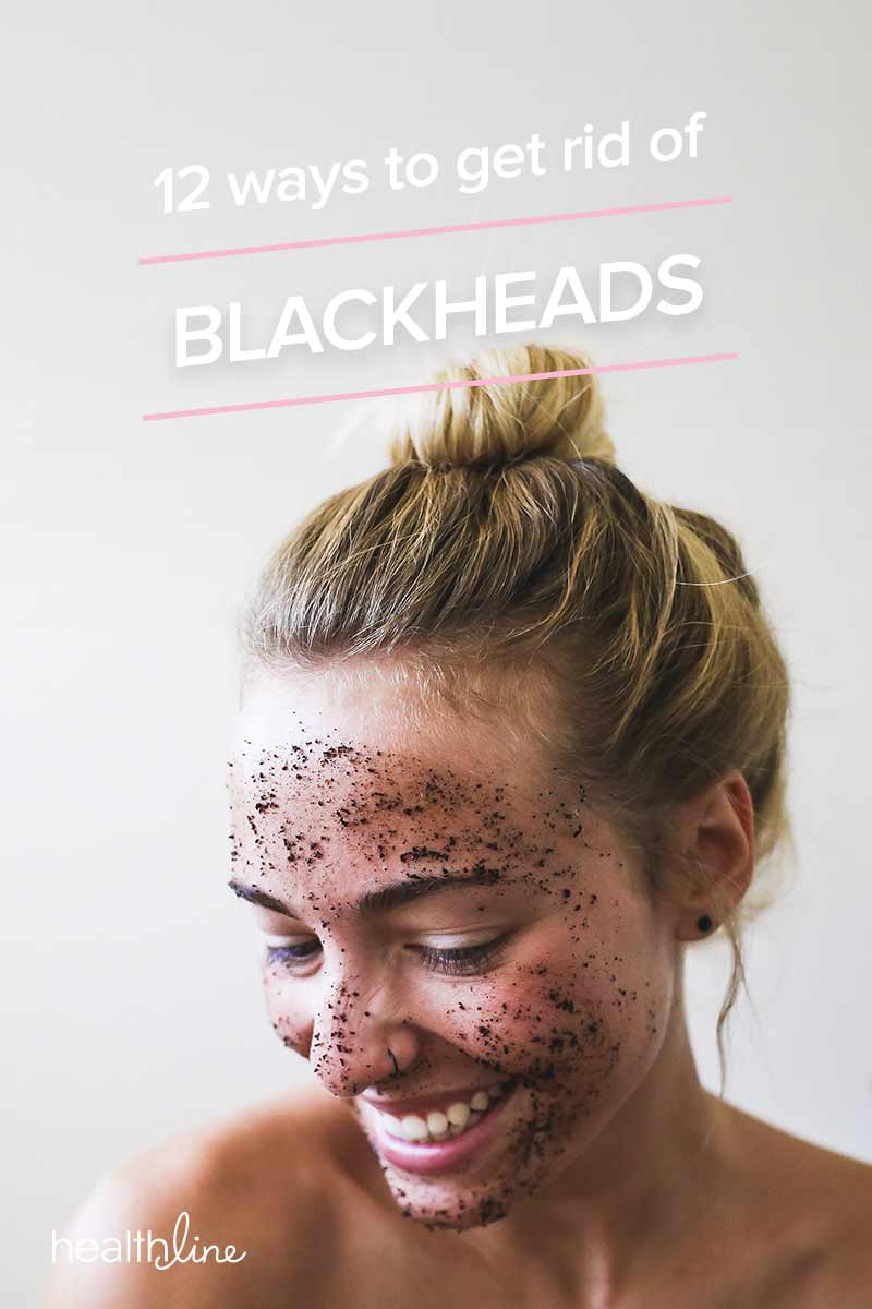 How to Get Rid of Blackheads: 12 Ways