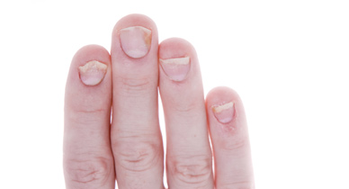 Toenail Falling Off: What to Do, Causes, and Recovery Time
