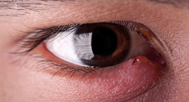 Home Remedies for Eye Infections: 6 Methods