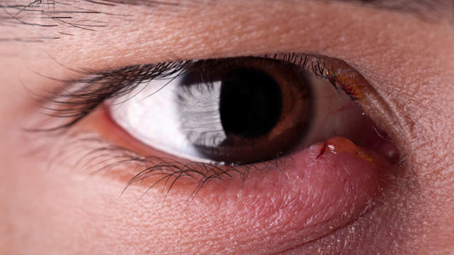 Natural Home Remedies For Stye