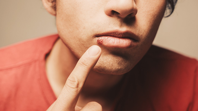 Valtrex For Cold Sores What You Want To Know