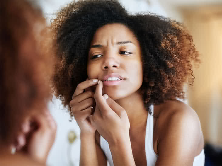 Types of Acne: Pictures, Treatments, and More