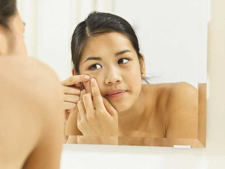 Blind Pimple Under The Skin 6 Ways To Treat It