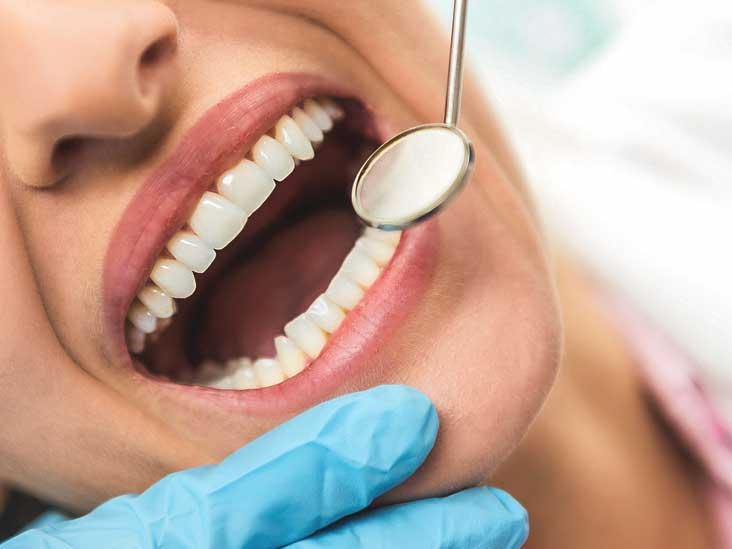 Dental Veneers: Cost, Procedure vs  Crown, Implants, and More