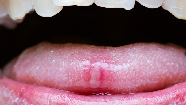 Can apple cider vinegar cause bumps on tongue