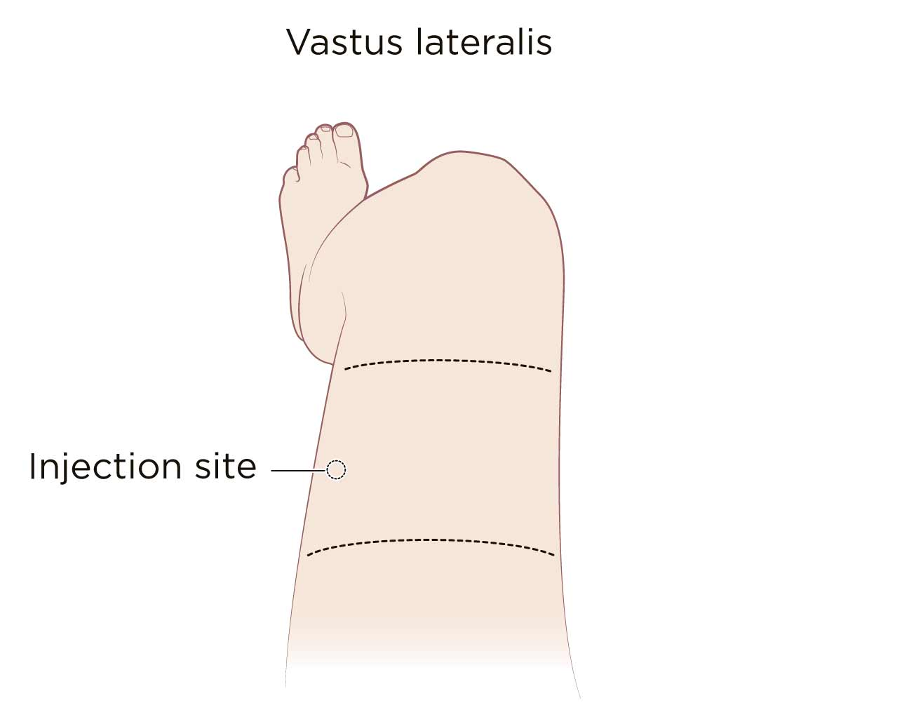 how to give intramuscular injection