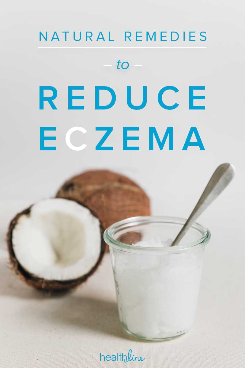 8 Natural Remedies for Eczema Relief
