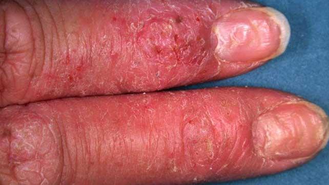 eczema meaning pikkelysömör gomba csak gyógyult