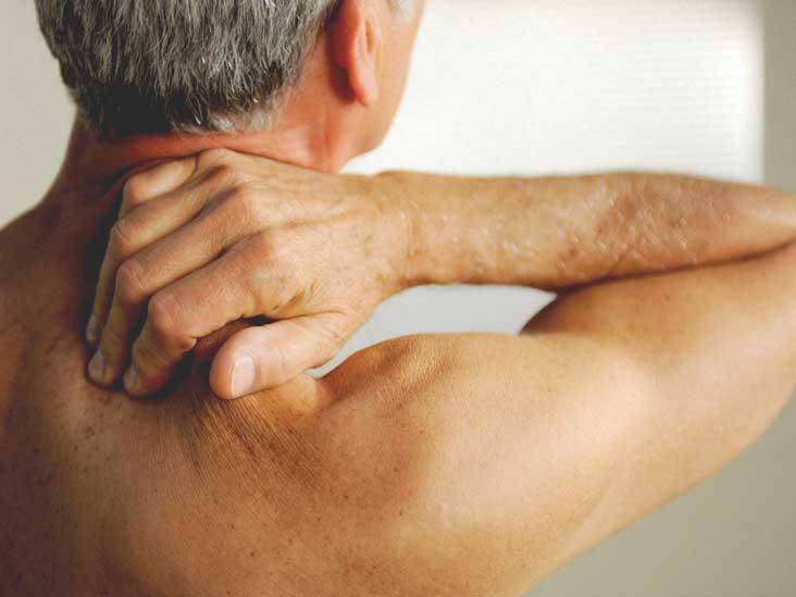 Fibromyalgia Rash: Pictures and Treatment