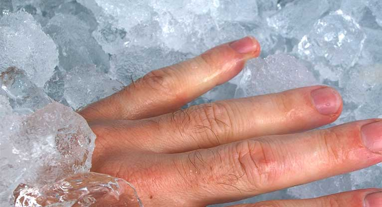 Smashed Finger: Treatment, Recovery, Seeking Help, and More