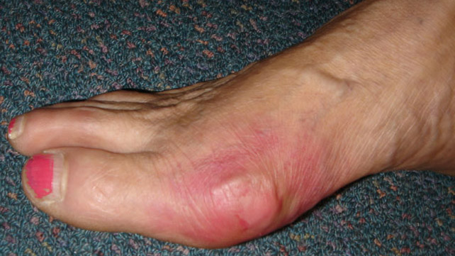 Gout Symptoms: Managing, Risk Factors, and Complications