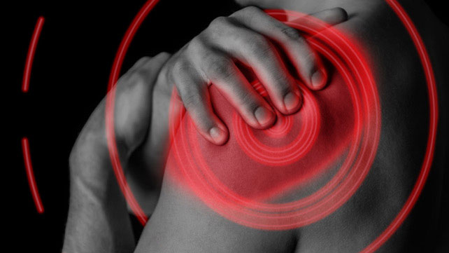 Calcific Tendonitis: Symptoms, Causes, and More