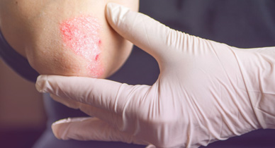 Psoriasis vs  Herpes: What's the Difference?