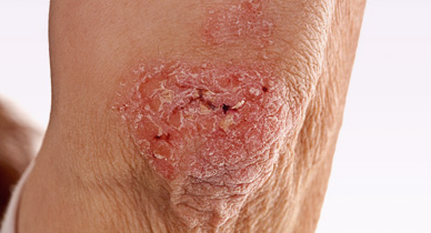 Butt Rashes: Causes, Home Remedies, Treatment, and More