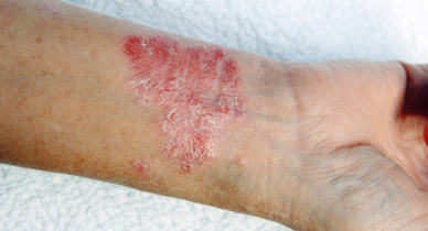 Psoriasis and Keratosis Pilaris: What's the Difference?