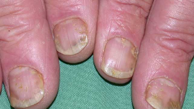 Nail Psoriasis: Pictures, Symptoms, and Treatments