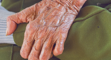 Leprosy: Symptoms, Pictures, Types, and Treatment