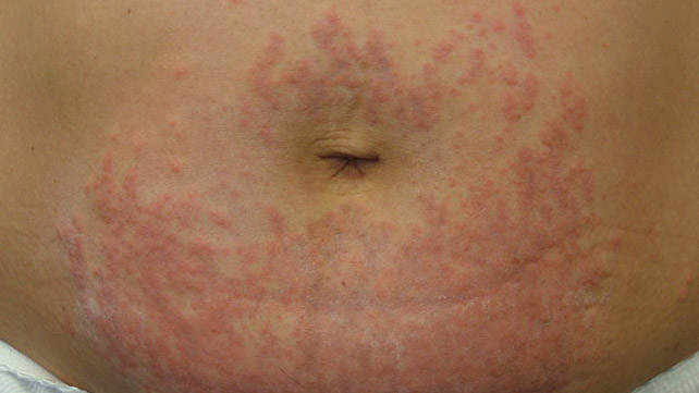Maculopapular Rash: Causes, Treatment, and More