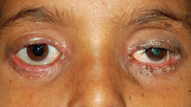Staphylococcal blepharitis: Overview, Symptoms, Treatment, and More