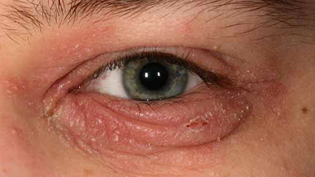 Staphylococcal blepharitis: Overview, Symptoms, Treatment