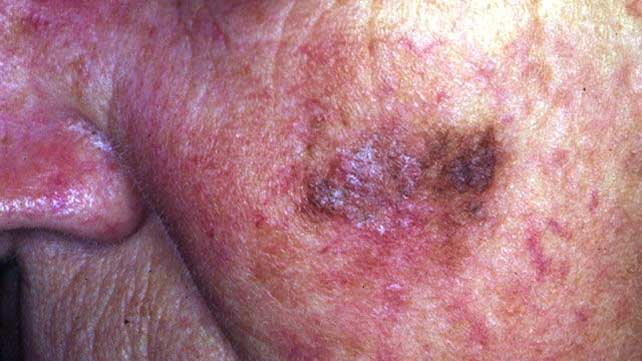 Skin Cancer Symptoms Pictures Types And More
