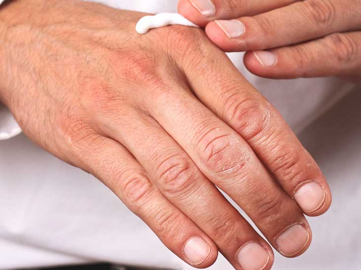 Itchy Skin at Night: Causes and Treatments