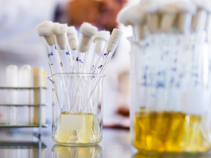 Causes of Cloudy Urine in Men and Women, Plus Treatment