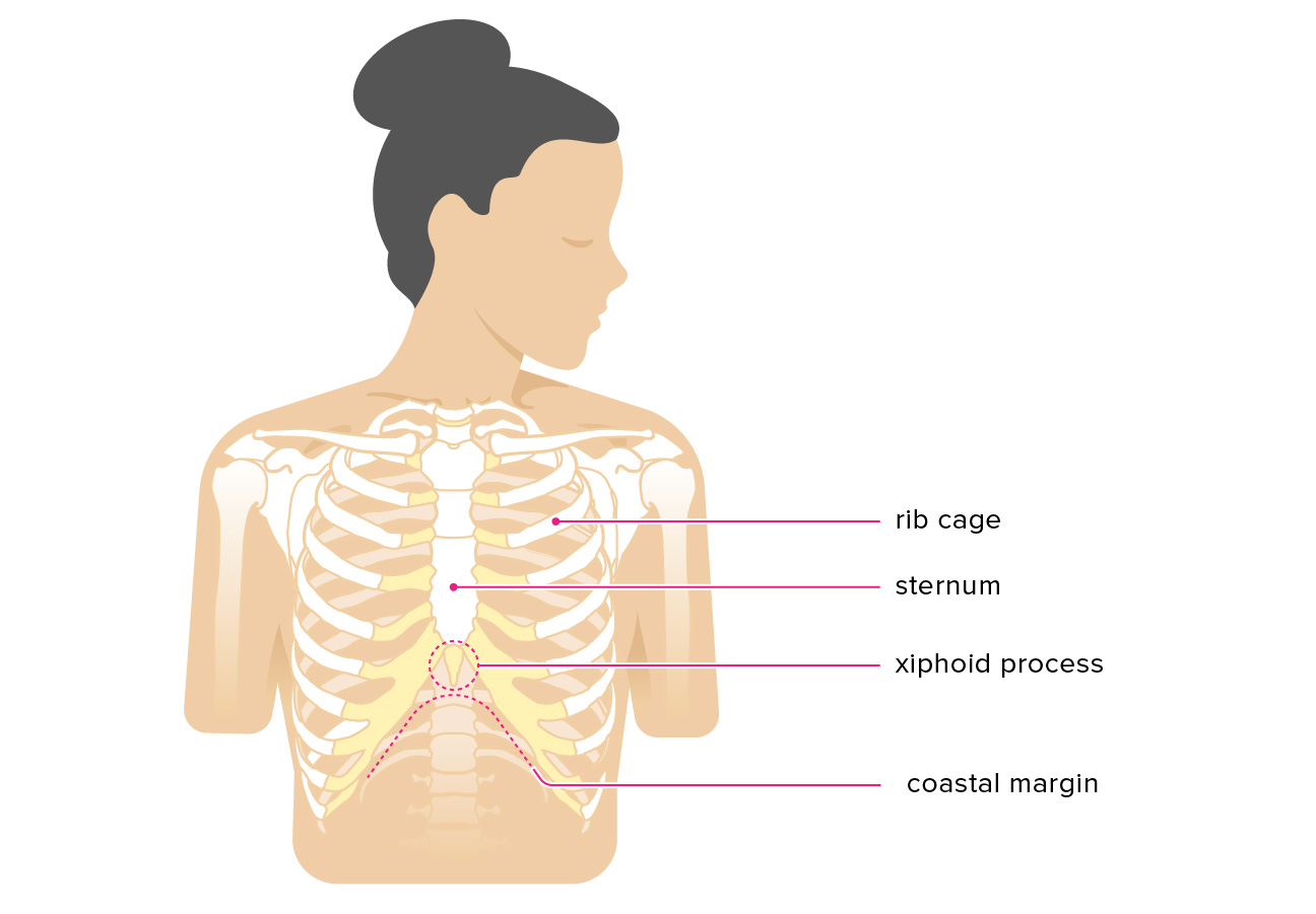 protruding sternum in adults