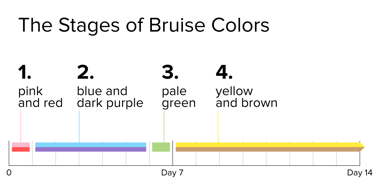 bruise stages