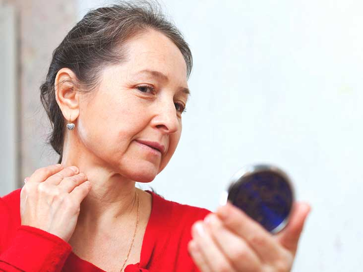 Menopause Itching: Causes, Treatment, Prevention, and More