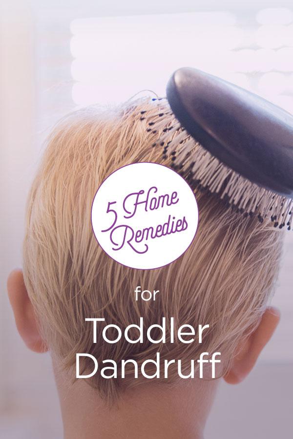 Toddler Dandruff: Home Remedies