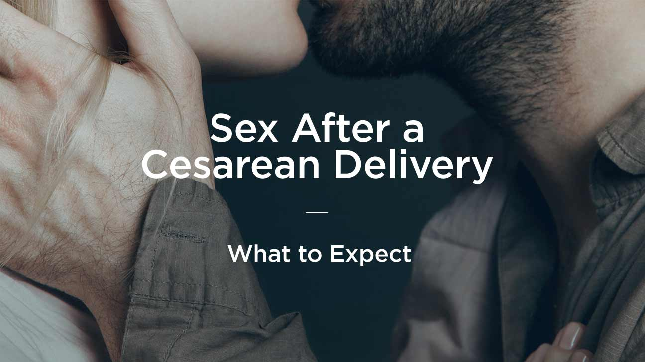 C Section Delivery