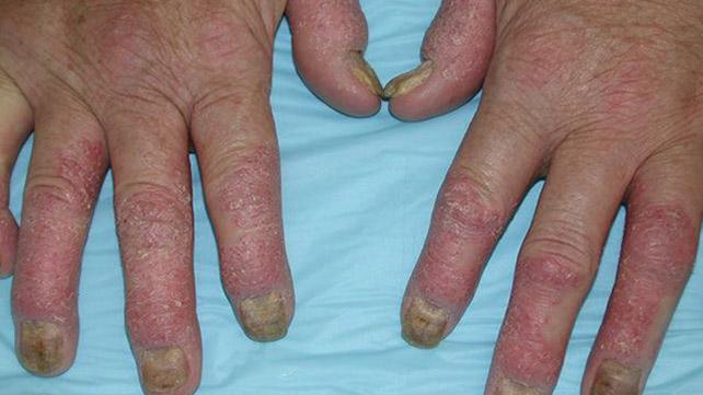 Psoriatic Arthritis Rash Symptoms Pictures And Treatment