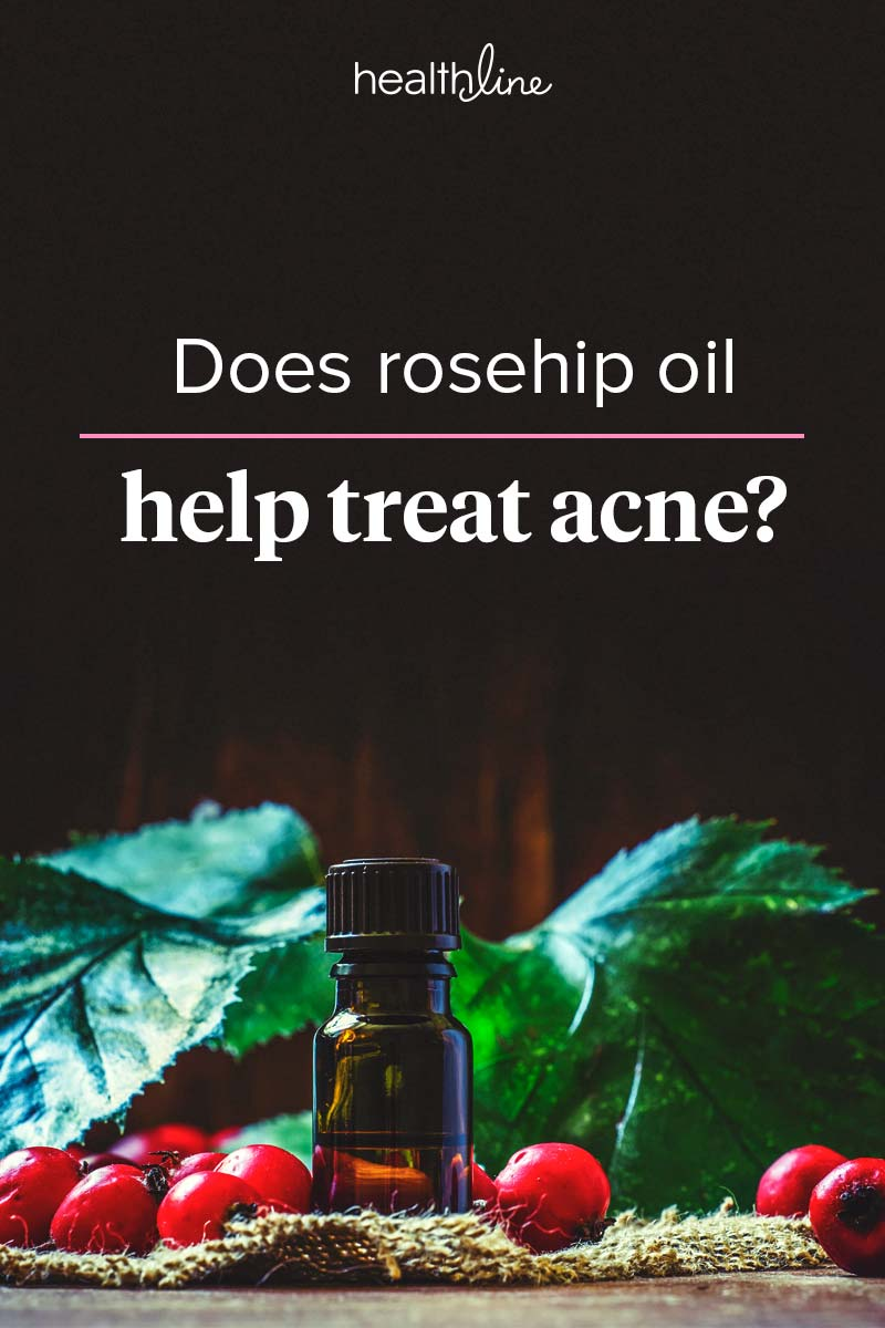 Rosehip Oil for Acne Spots and Scars: Use, Products, and More