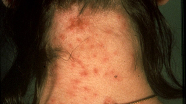 Skin Infection: Pictures, Causes and Treatments