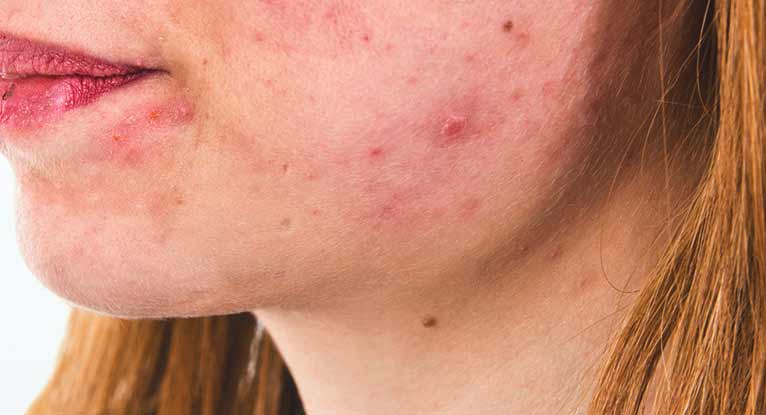 Pyogenic Granuloma: Causes, Diagnosis, and Treatments
