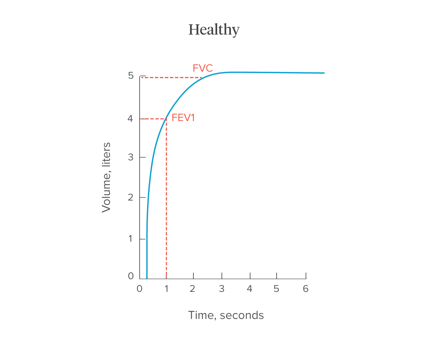 Spirometry: Procedure, Normal Values, and Test Results